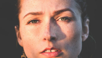 What's The Difference Between Freckles And Sun Spots?